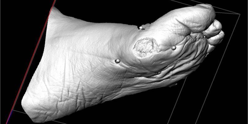 3D billede af fod