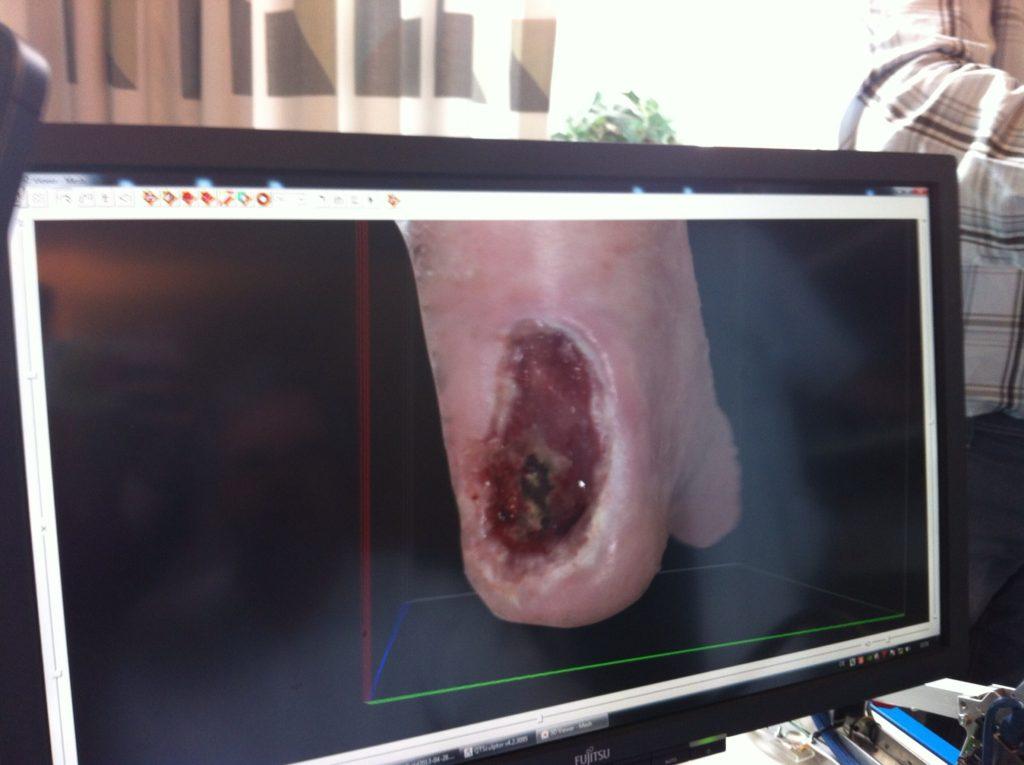 Telemedicinsk behandling af fodsår